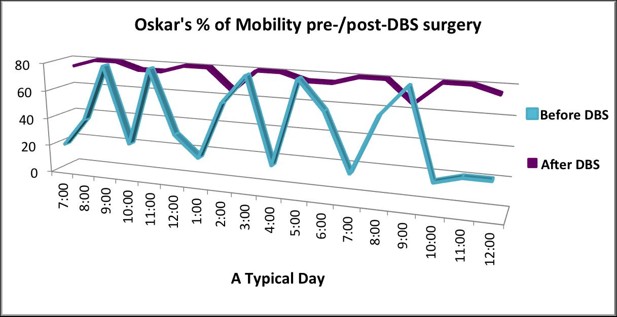 DBS_chart
